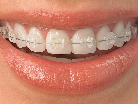 Orthodontic Treatment For Children And Adults
