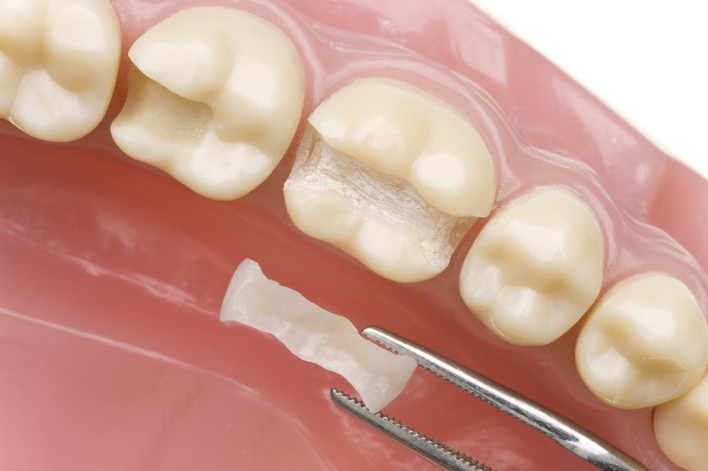 Σφράγισμα δοντιού: όλα όσα πρέπει να γνωρίζετε