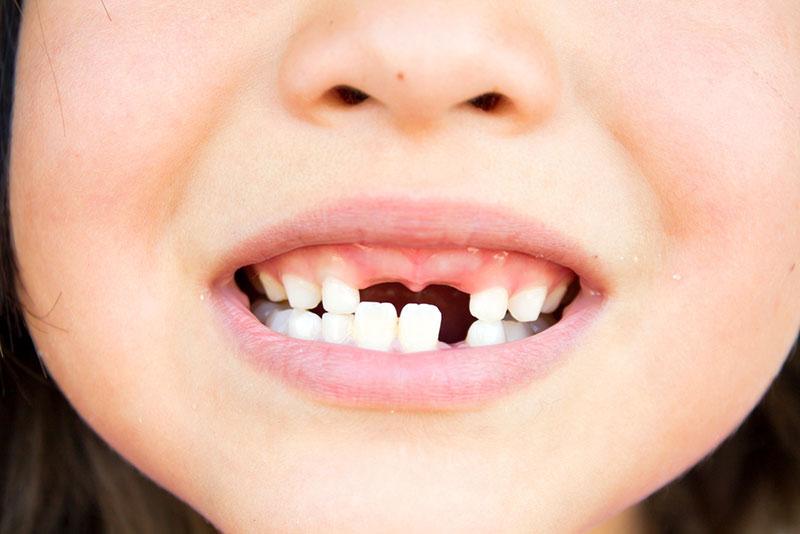 Τραυματισμός παιδιών και εφήβων: Τι πρέπει να κάνουμε αν τους βγει ένα μπροστινό δόντι (εκγόμφωση);