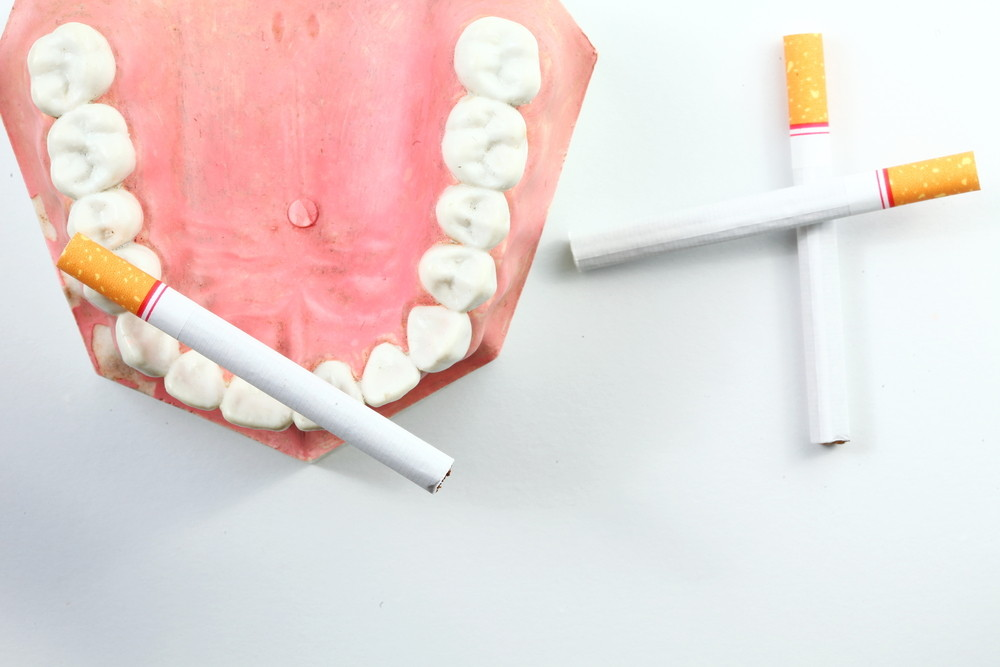 Κάπνισμα και Περιοδοντίτιδα: Υπάρχει Συσχέτιση;